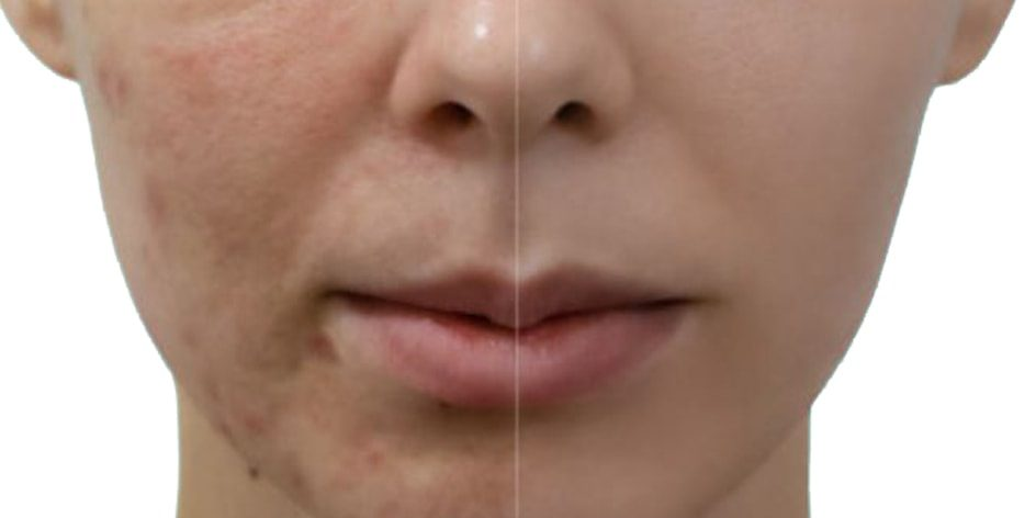 PRP Therapy for Acne Scars Treatment