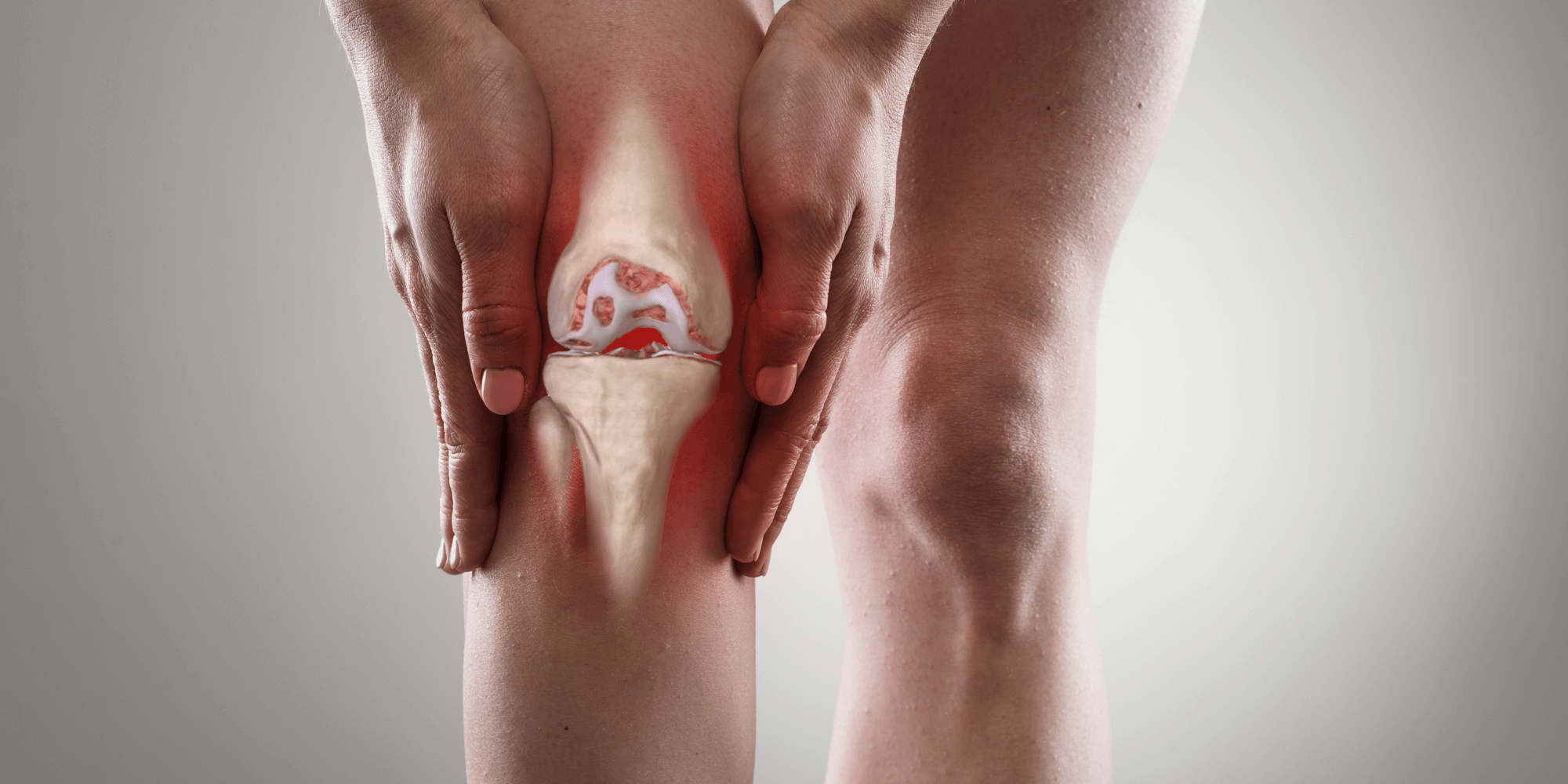 Medica Stem Cell Therapy for Osteoarthritis